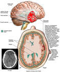 Initial Post-accident Brain Injuries