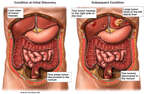 Progression of Colon Cancer with Metastasis to the Liver