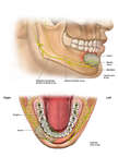 Tumor of Jaw