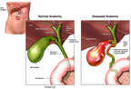 Diseased Gall Bladder