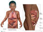 Fatal Abdominal Injuries