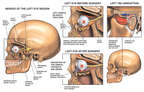 Post-accident Left Eye Nerve Injuries and TMJ Disruption