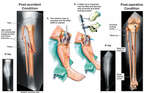 Lower Leg Fractures with Intramedullary Rod Fixation