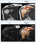 Acromioclavicular (AC) Joint Injury
