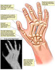 Surgical Repairs of the Right Hand