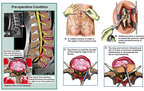 Revision of Hemilaminotomy and Diskectomy