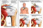 Left Shoulder Impingement and Rotator Cuff Tear with Surgical Repair
