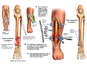 Left Leg Fractures with Surgical Repairs