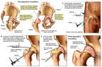 Arthroscopic Hip Repairs