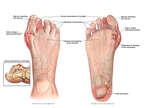 Pre-operative Condition of the Right Foot