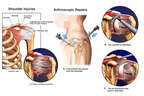 Left Shoulder Capsulitis and Impingement with Initial Arthroscopic Repairs
