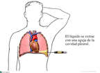 Placement of a Thoracentesis Needle