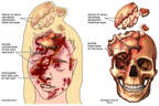 Fatal Head Injuries