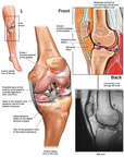 Left Knee Injuries