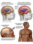 Brain Surgery - Post-accident Head Injuries with Surgical Repairs