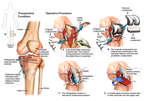 Post-traumatic Arthritis of the Knee with Surgical Total Knee Replacement