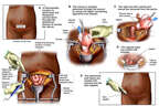 Abdominal Hysterectomy and Bilateral Salpingo-oophorectomy