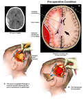 Left-sided Brain Injury with Surgical Craniotomy