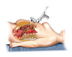 Laparoscopic Surgery - Trocar Insertion
