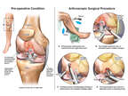 Right Knee Injuries with Surgical Treatment