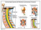 Cervical Spine Injuries with Multilevel Laminectomy Procedure