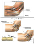 Ulnar Nerve Injury with Surgical Repair