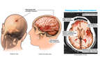 Brain and Skull Injuries