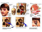 Traumatic Crush Injuries to the Left Paranasal Sinus and Orbital Region with Surgical Repairs