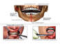 Traumatic Facial and Dental Injuries with Surgical Fixation of the Mandible