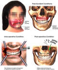 Post-accident Facial Trauma with Surgical Fixation