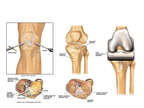 Progression of Condition of Knee Repairs