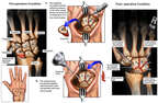 Wrist Injuries with Surgical Fusion