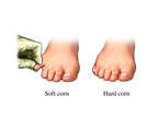 Corns - Toe Pathology
