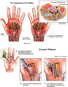 Bilateral Carpal Tunnel Syndrome with Surgical Repairs