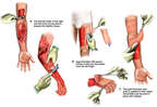 Skin Grafting of the Arms and Hands