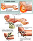 Ulnar Nerve Decompression and Transposition