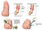 Corrective Surgery for Hallux Rigidus