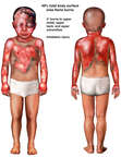 Front and Back Male Child Figures with Post-accident Burn Injuries