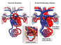 Normal Heart Anatomy vs. Heart Anatomy with Acute Pulmonary Edema