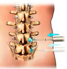 Facet Injection: Posterior view