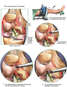 Knee Injuries with Arthroscopic Repair