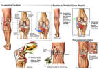 Anterior and Lateral Femoral Tibial Ligament Laxity with Additional Repairs