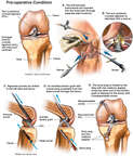 Left Knee Injuries with Posterior Cruciate Ligament Reconstruction