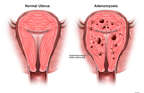 Comparison of Normal Uterus with Adenomyosis