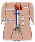 Anatomy of the Inferior Vena Cava