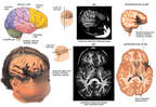 Condition Subsequent to Traumatic Brain Injury