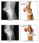 Patellar Injuries