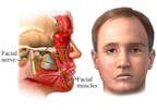 Bell's Palsy: facial droop