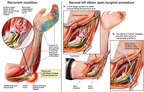 Recurrent Left Cubital Tunnel Syndrome with Nerve Transposition Surgery