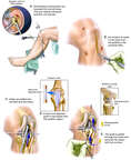 Reconstruction of the Anterior Cruciate Ligament (ACL)